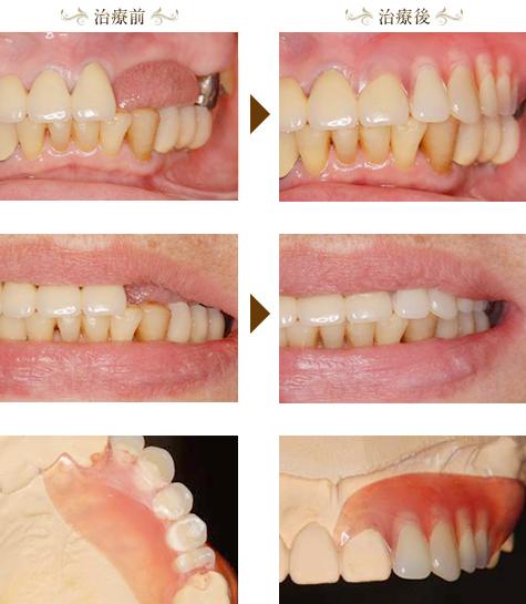 審美義歯(エステショット)症例1