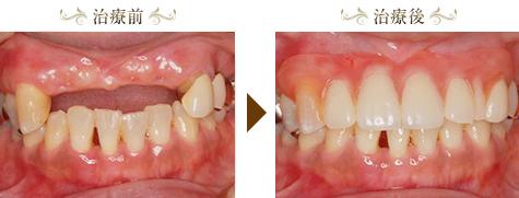 審美義歯(エステショット)症例2