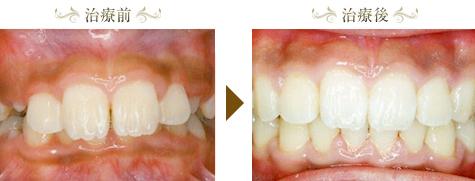 過蓋咬合の矯正治療症例