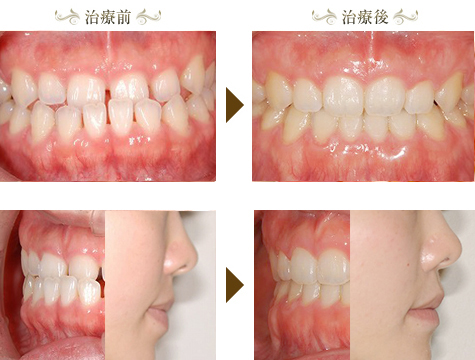 下顎前突(受け口)の矯正治療症例