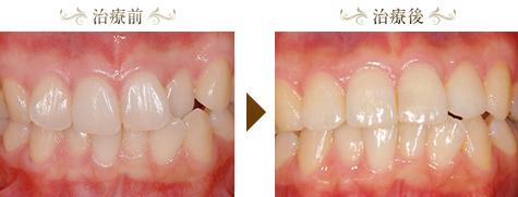 上の前歯が不正(叢生)の矯正治療症例