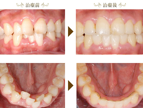 叢生(上下の前歯が不正)の矯正治療症例