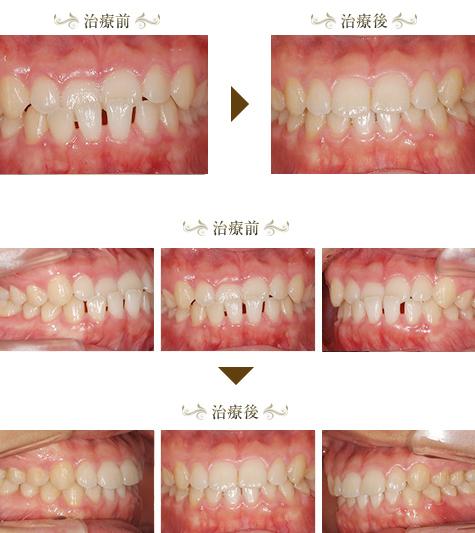 受け口(下顎前突)の矯正治療症例
