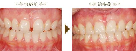 空隙歯列(すきっぱ)の矯正治療症例