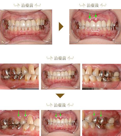 歯周病症例1