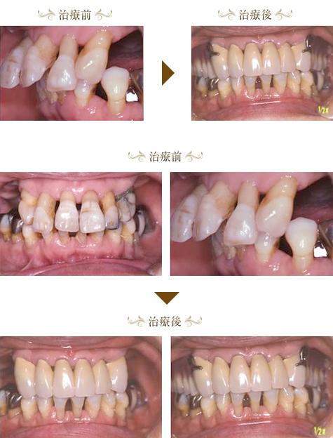 歯周病症例2