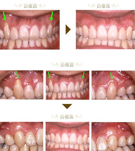 歯周病症例3