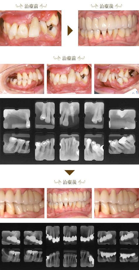 歯周病症例4