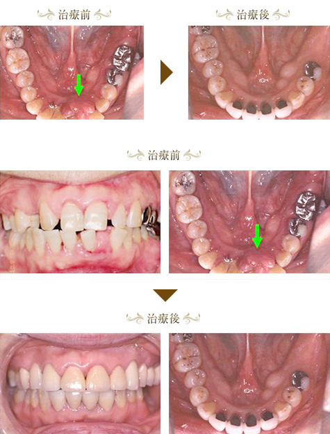 歯周病症例5