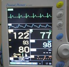 静脈内鎮静法とは