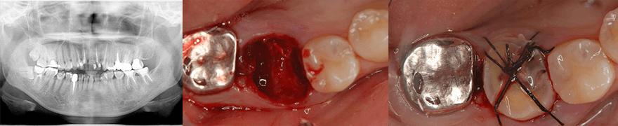 歯牙移植とは