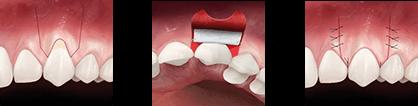 歯肉移植とは